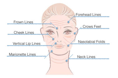 Wrinkles: Causes & Natural Care